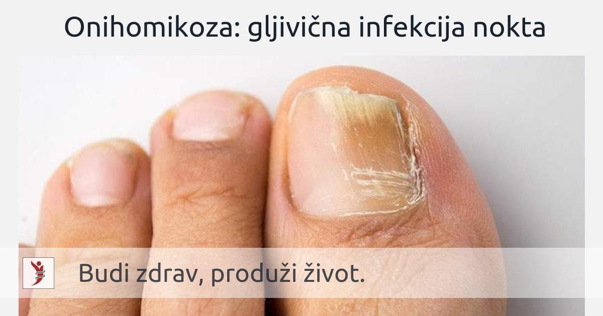 Onihomikoza: gljivična infekcija nokta