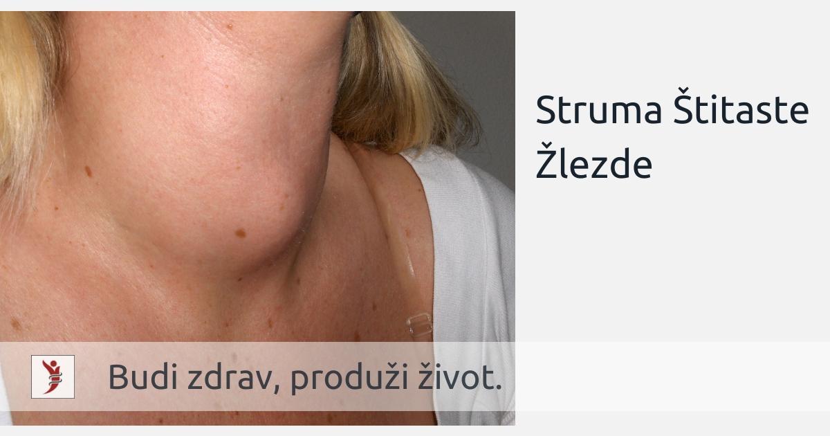 Struma Štitaste Žlezde; Foto: https://hr.wikipedia.org/wiki/Gu%C5%A1avost#/media/Datoteka:Struma_001.jpg