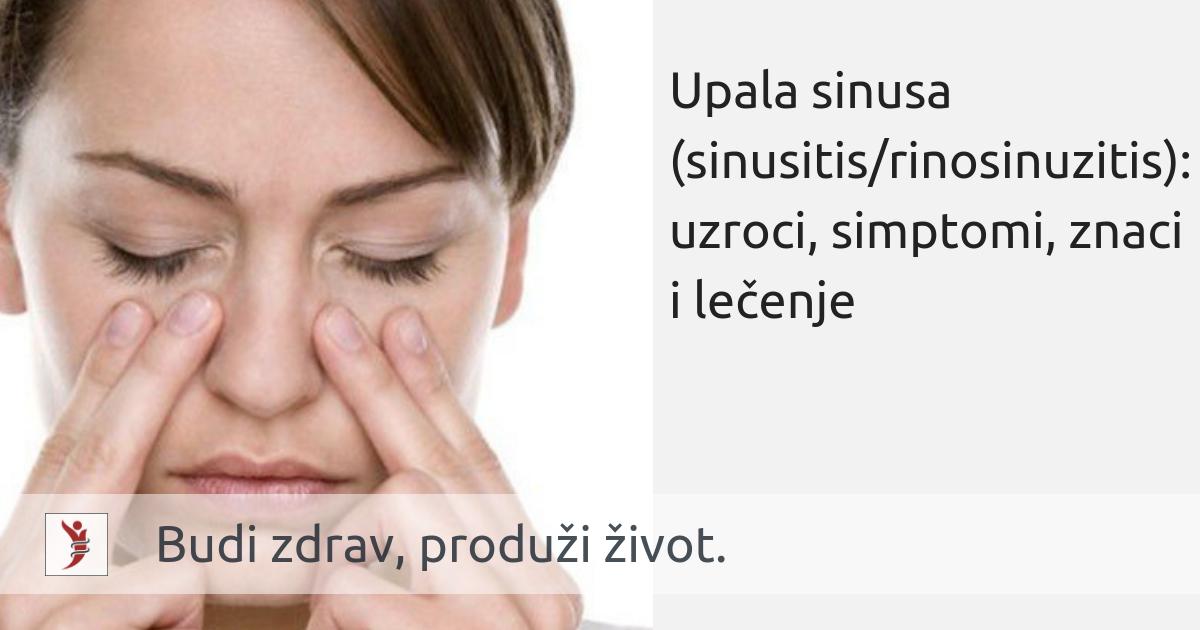 Upala sinusa (sinusitis - rinosinuzitis): uzroci, simptomi, znaci i lečenje