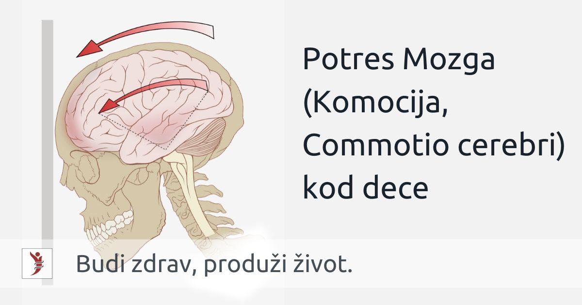 Potres Mozga (Komocija, Commotio cerebri) kod dece Foto: https://en.wikipedia.org/wiki/Concussion