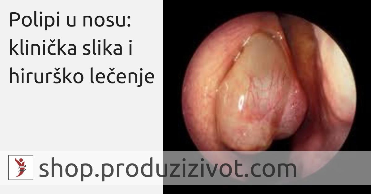 Polipi u nosu: klinička slika i hirurško lečenje; FOTO: http://rhinitis.hawkelibrary.com/album12/143_G?full=1