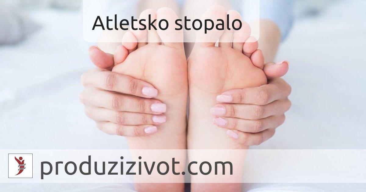 Atletsko Stopalo: Gljivična Infekcija Stopala