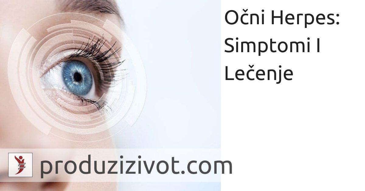 Očni Herpes: Simptomi I Lečenje; FOTO: https://www.ursapharm.de/en/products/ophthalmology/