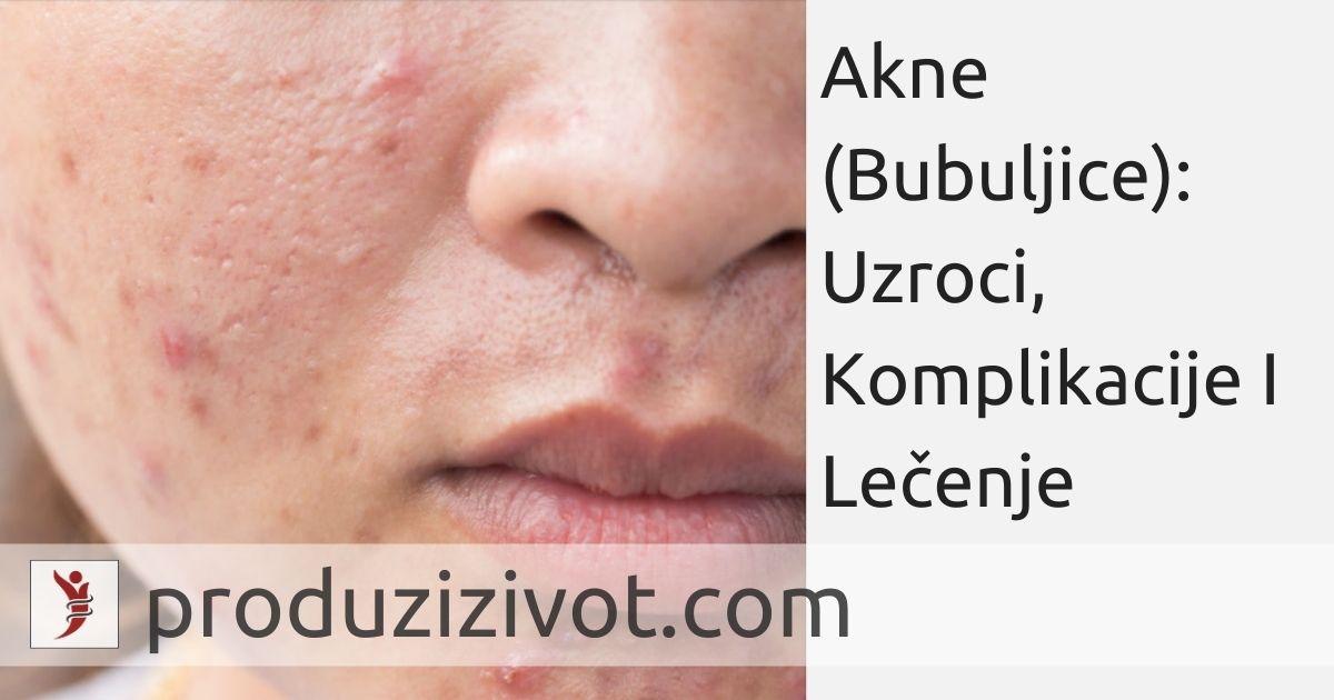 Akne (Bubuljice): Uzroci, Komplikacije I Lečenje; FOTO: https://www.insider.com/ways-to-clear-skin-according-to-experts-2018-6