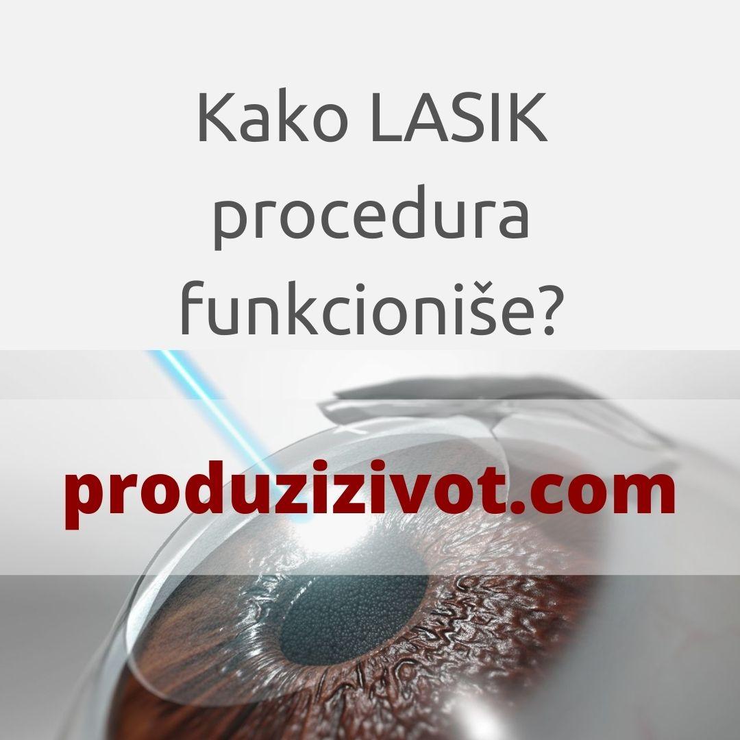 Kako LASIK procedura funkcioniše?